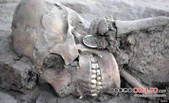 Cráneo alargado y puntiagudo en la parte posterior. Fue encontrado en México.