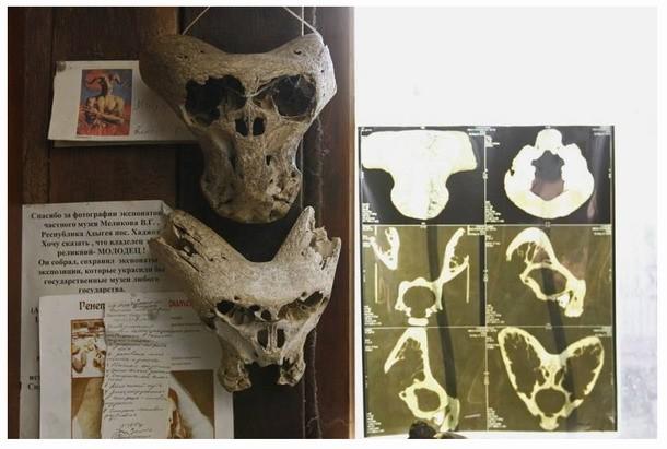 Los cráneos hallados son muy extraños y a primera vista hacen pensar en la posibilidad de que hayan pertenecido a un individuo extraterrestre