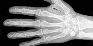2017 el año del inicio del control de masas mediante implantes de chips