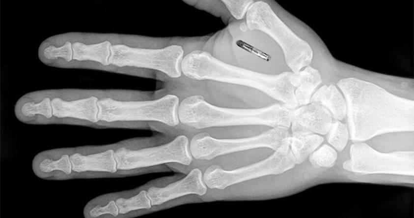 2017: El año del inicio del control de masas mediante implantes de chips
