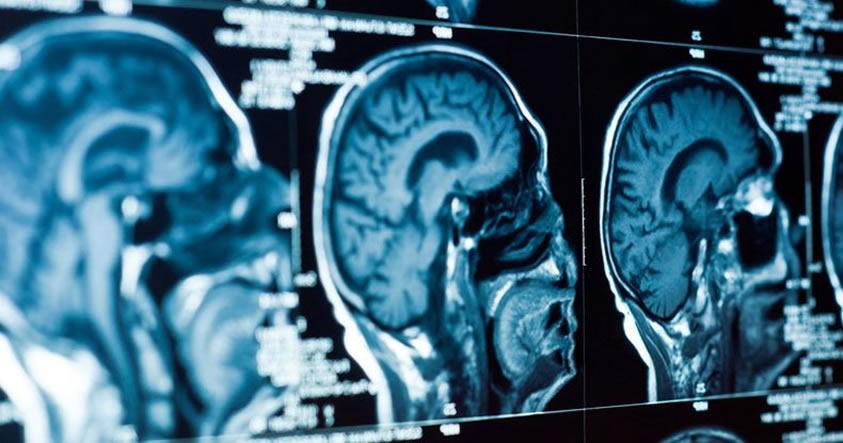 Científicos dicen haber identificado el origen físico de la depresión en el cerebro