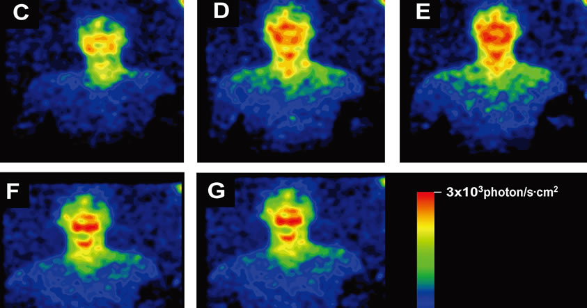 Los seres humanos también emiten luz, pero no es posible verla con nuestros ojos
