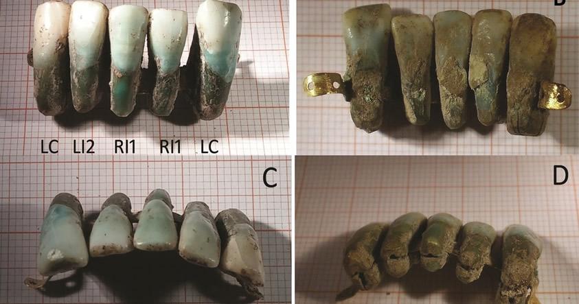 Dentadura postiza de 400 años de antigüedad es hallada por arqueólogos en Italia