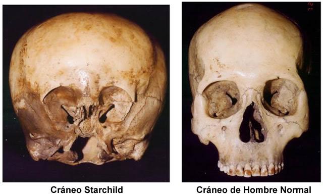 Cráneo del Starchild comparado con un cráneo humano normal