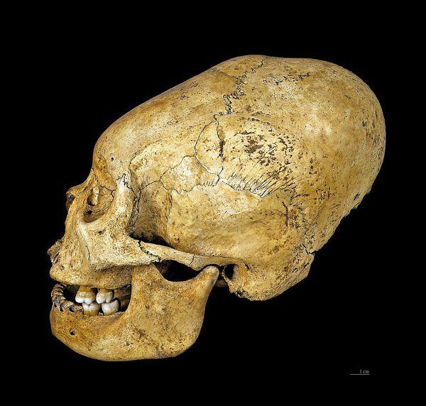 Homo sapiens sapiens – Deformidad craneal provocada intencionadamente («deformidad peruana»), Cultura Proto-Nazca (200 a. C. – 100 a. C.), región de Nazca, Perú. Museo de Toulouse, Francia.