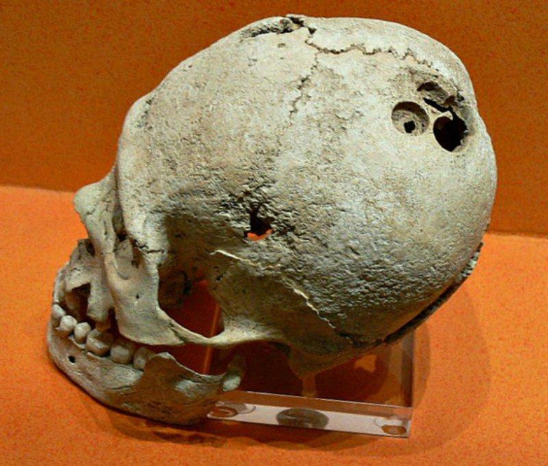 Trepanación craneal precolombina procedente del yacimiento arqueológico de Monte Albán, México. Museo de Sitio de la Zona Arqueológica de Monte Albán.