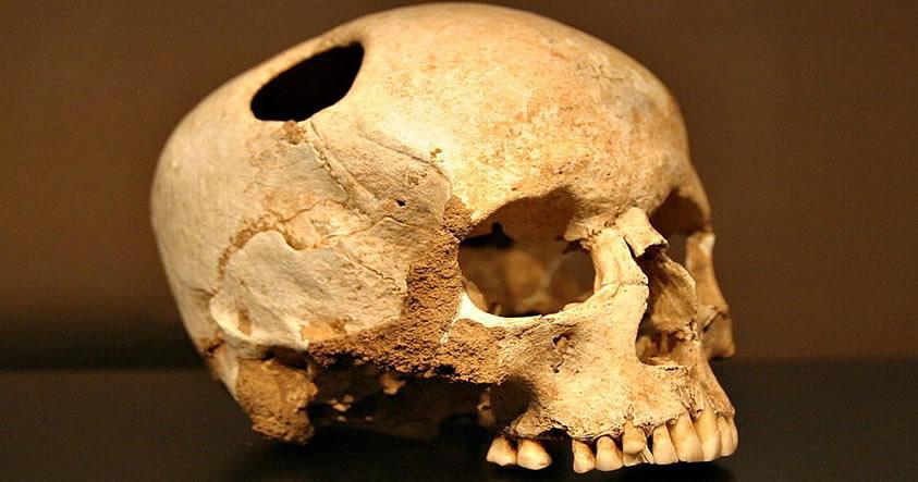 Antiguas trepanaciones craneales: Una cirugía milenaria