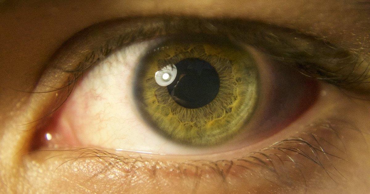 Científicos han creado un implante de retina artificial que podría restaurar la visión a millones