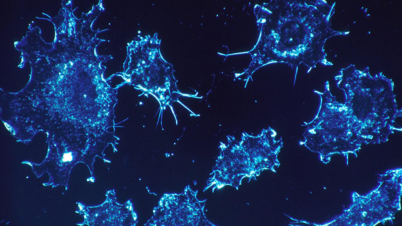Científicos crean nanopartículas que pueden destruir el cáncer