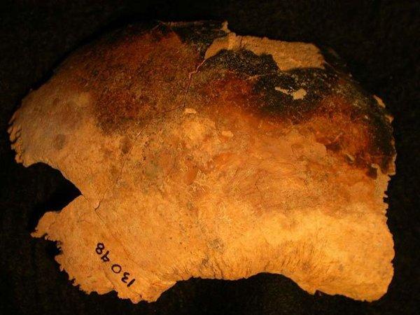 Parietal derecho de un cráneo adulto que muestra marcas de quemaduras.