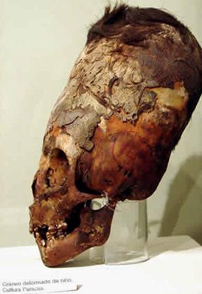 Uno de los cráneos alargados descubiertos cerca, en la península de Paracas