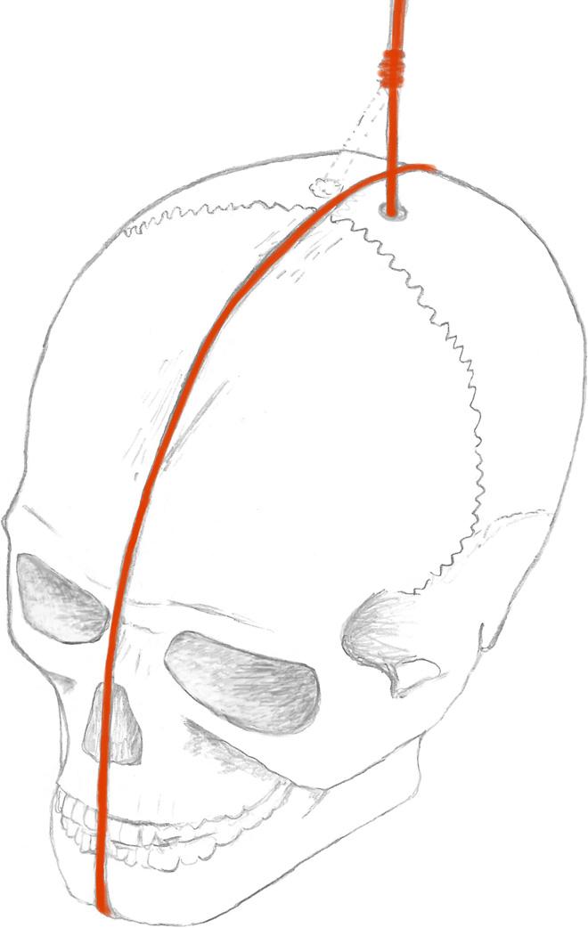 Perforación en la parte superior del cráneo era utilizada para suspender el cráneo con un cable rojo.