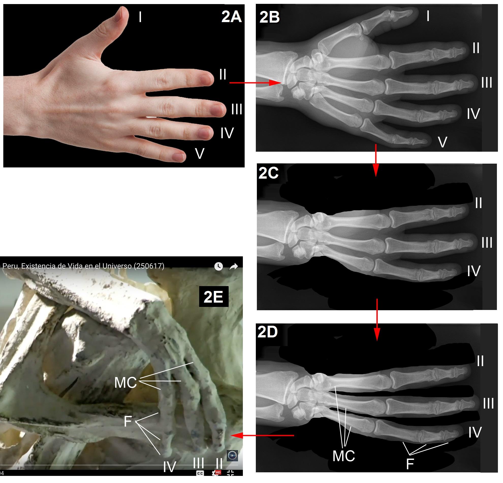 Figura 2. Fuente: Wikimedia Radiografía de una mano humana: By Hellerhoff – Own work, CC BY-SA 3.0 y Foto de mano humana: By Evan-Amos – Own work.