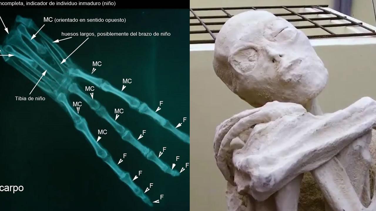 La falsa mano «alienígena» que los científicos de Jaime Maussan determinaron anatómicamente correcta y funcional