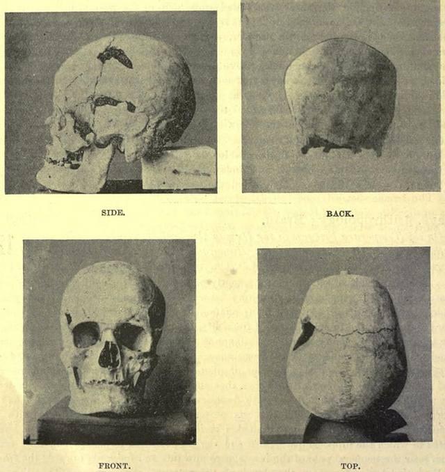 El posible cráneo del faráón «gigante».