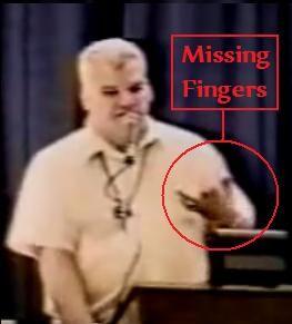 Schneider afirma haber perdido tres dedos de la mano durante el fatídico encuentro con seres extraterrestres.