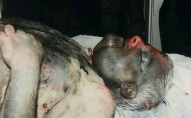 Supuesta fotografía del cuerpo de Phil Schneider torturado