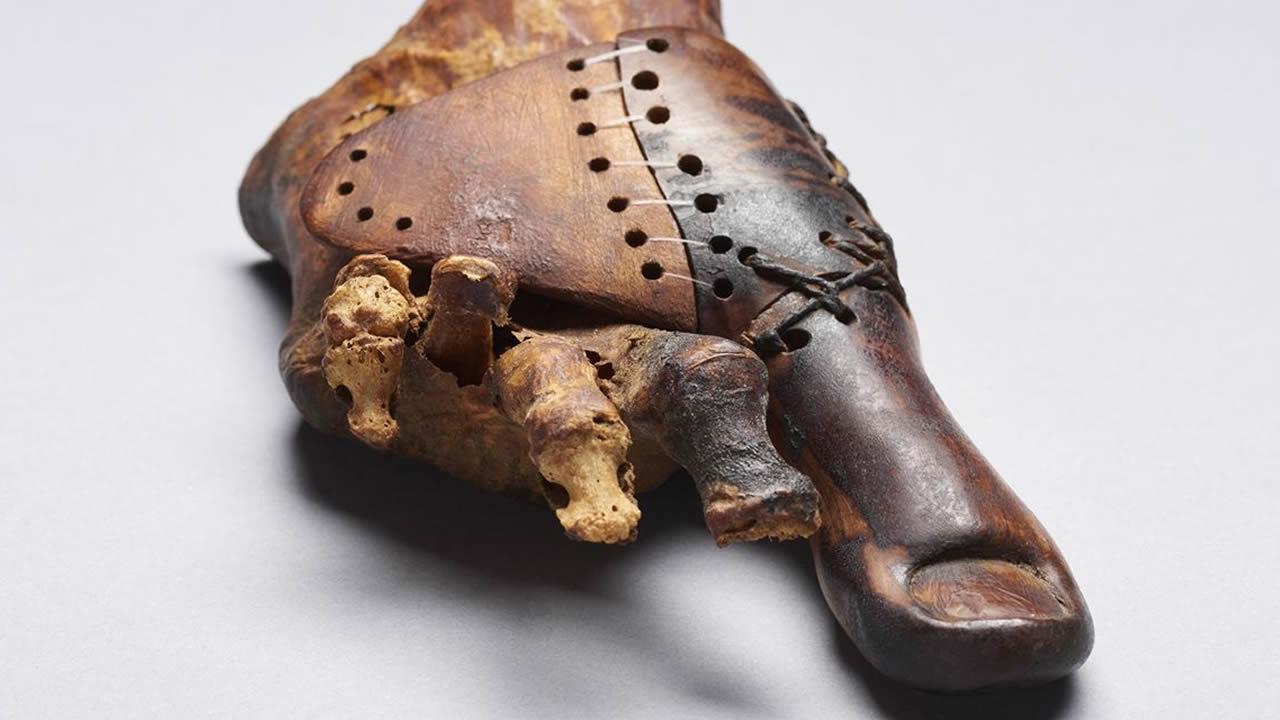 Procedimientos médicos del antiguo Egipto que aún hoy usamos