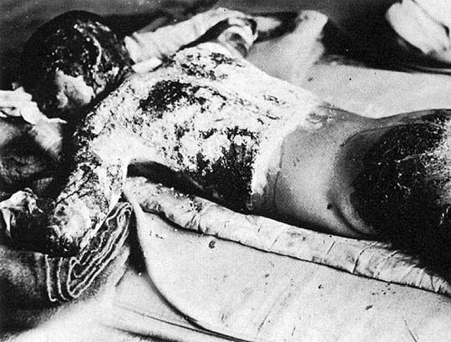 Víctima de la Segunda Guerra Mundial