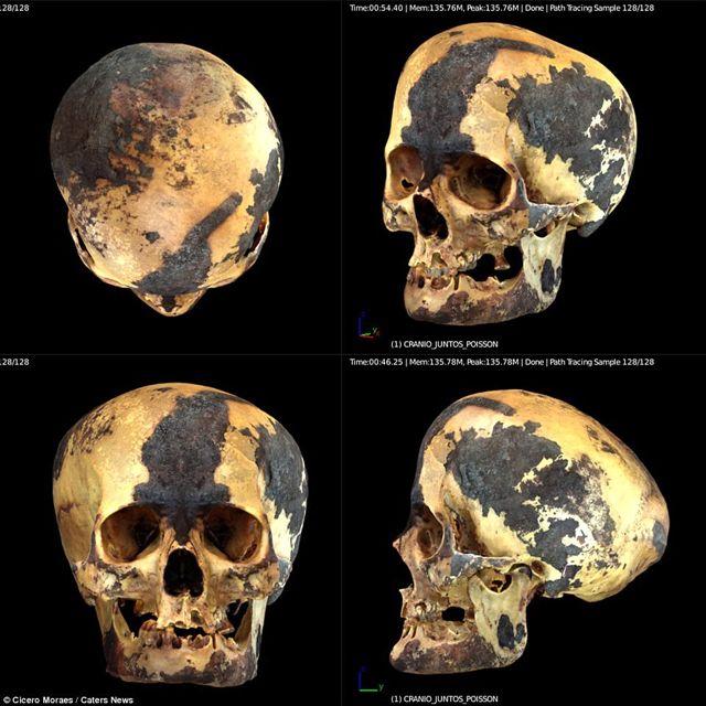 El cráneo de la momia también estaba severamente deformado. Había sido aplanado en la parte superior y posterior de la cabeza en las regiones parietal y occipital