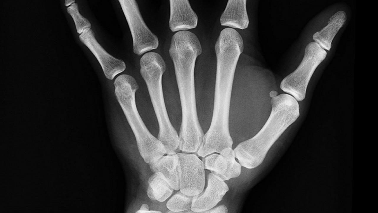 Científicos crean aleaciones metálicas similares a los huesos humanos