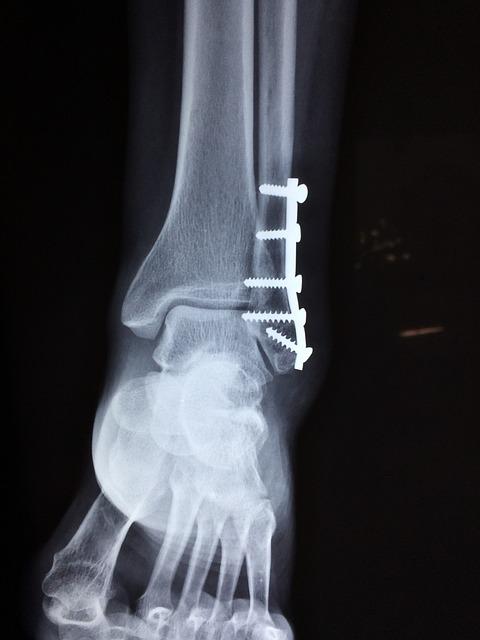 Una medida dolorosa y menos efectiva para tratar huesos rotos pronto podría ser cosa del pasado
