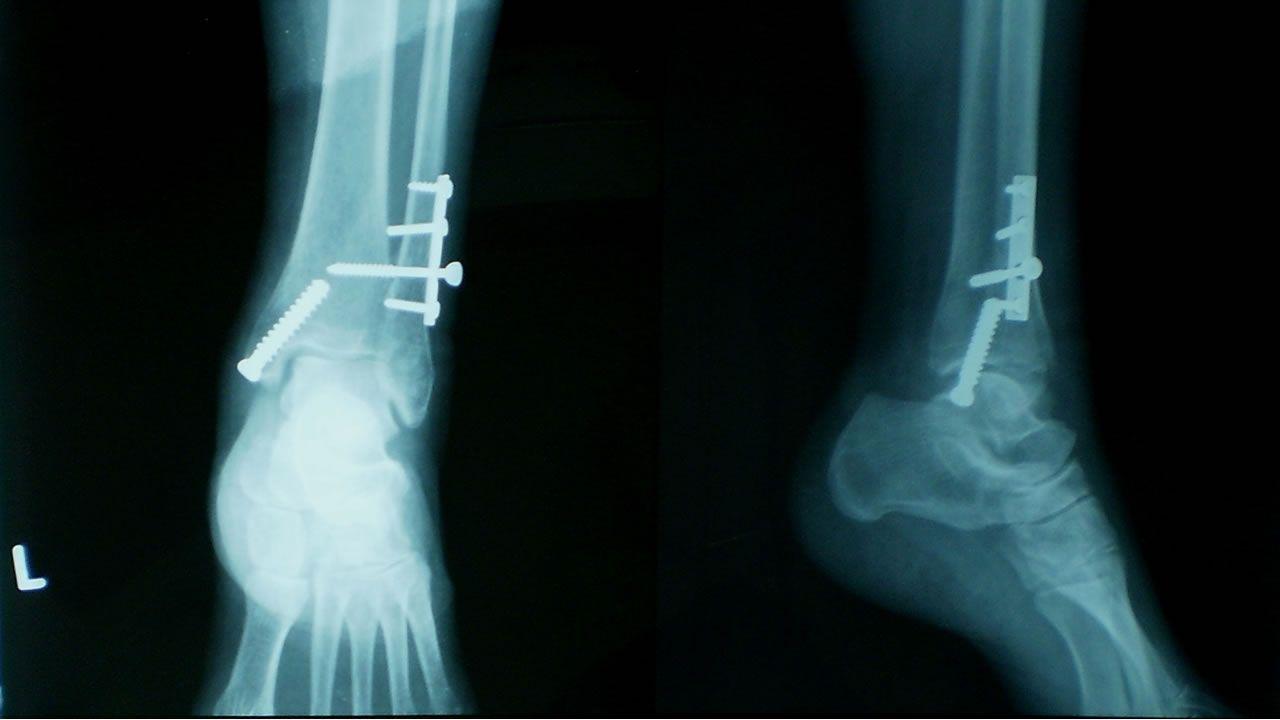 Nuevo tipo de implante cura las fracturas transformándose en hueso
