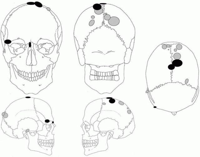 Ubicación del trauma causado por una fuerza contundente en los cráneos de mujer (marcas grises) y de hombre (marcas negras), respectivamente