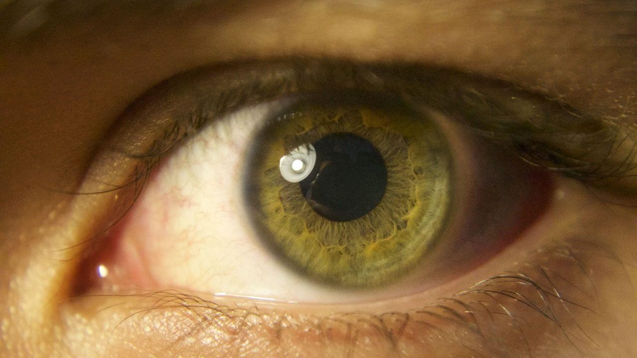 Novedoso tratamiento devuelve la visión a dos pacientes con ceguera común