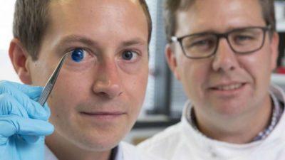 El Dr. Steve Swioklo y el Profesor Che Connon muestran una córnea teñida para la muestra