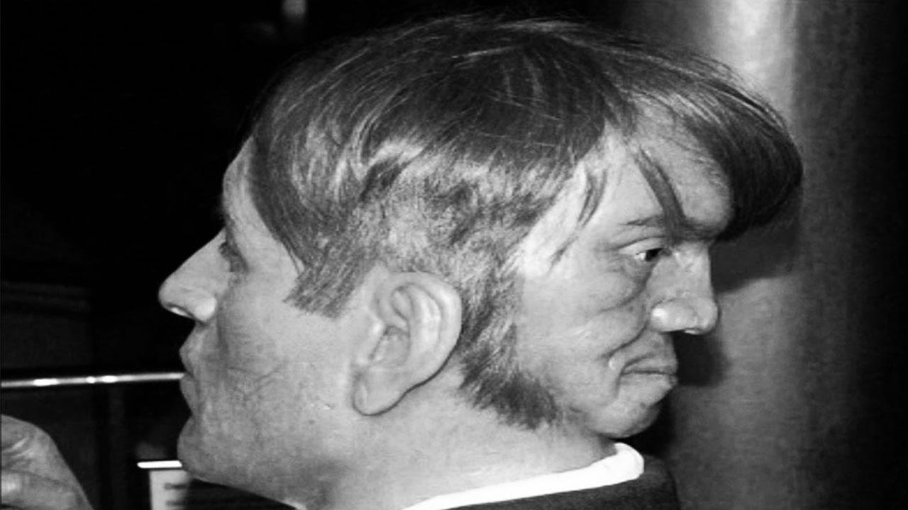 Esta es la real «historia» de Edward Mordrake, el hombre con dos rostros