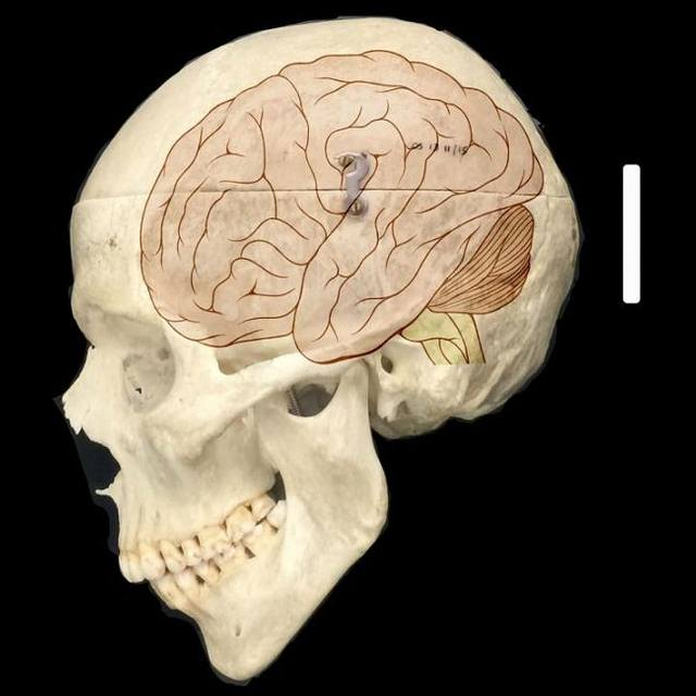 La familia de genes NOTCH2NL se encuentran solo en humanos y parece desempeñar un papel fundamental en que nuestro cerebro sea más grande que el de otros animales