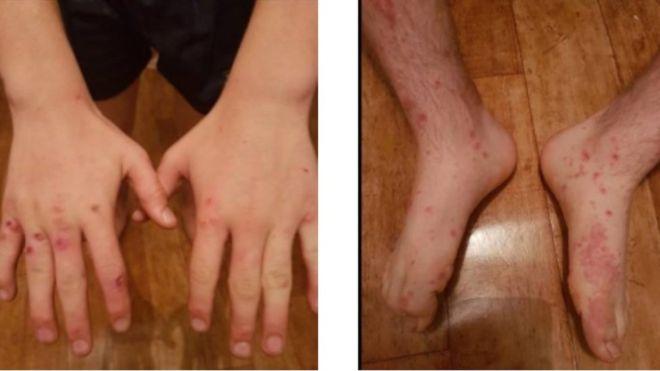 Las lesiones distintivas de la viruela aparecieron en las manos, los brazos y los pies del niño