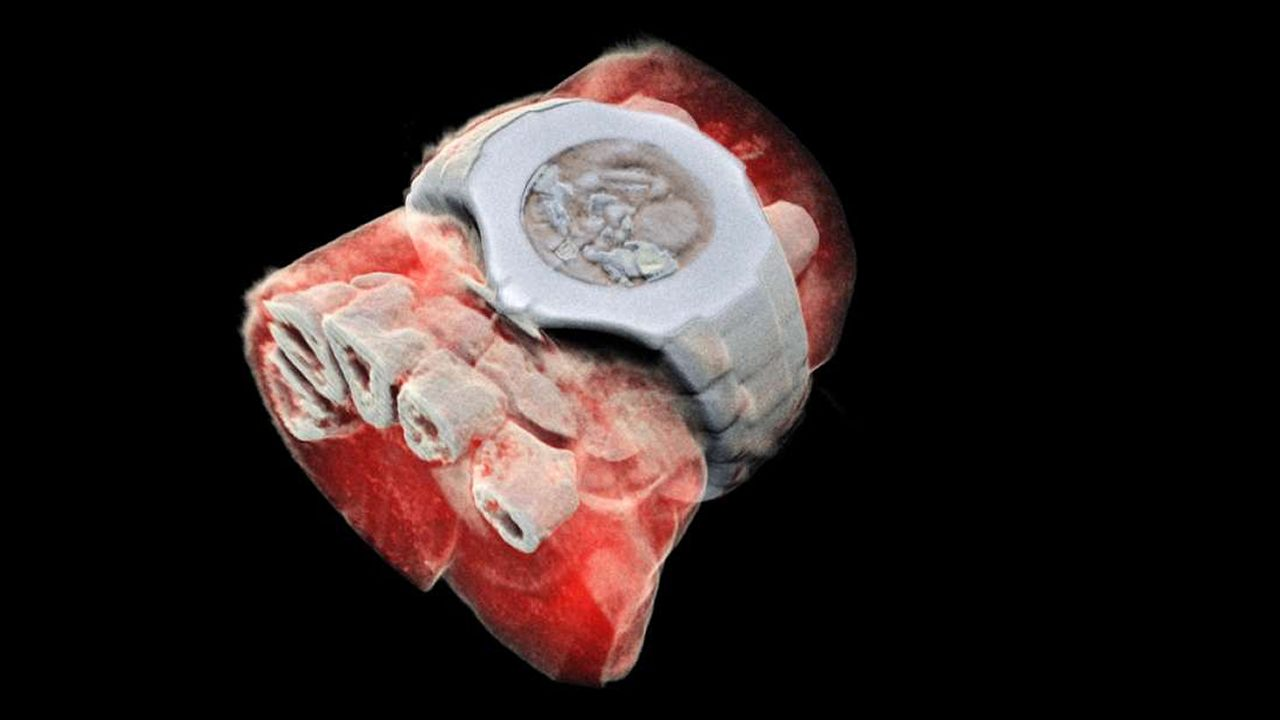 Desarrollan la radiografía 3D, y muestra el cuerpo humano con un detalle sin precedentes