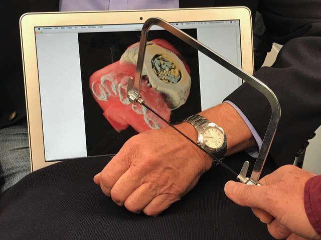 Los investigadores muestran cómo la imagen 3D puede revelar de forma no invasiva lo que uno vería si cortaran en el cuerpo