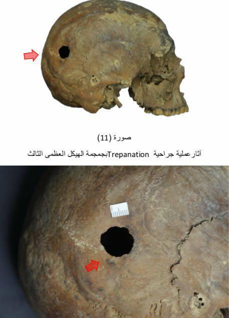 Signos de trepanación en uno de los cuerpos hallados dentro del sarcófago negro.