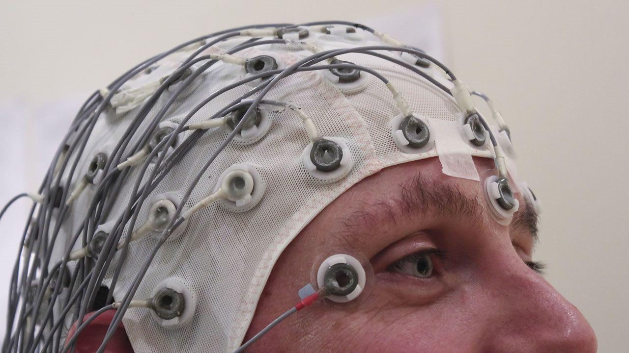 Científicos hallan túneles secretos entre el cráneo y el cerebro