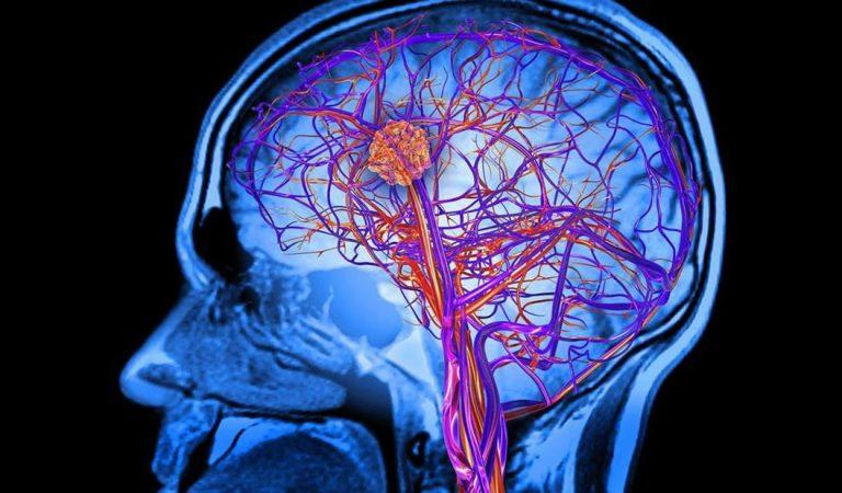 Bacterias podrían vivir en nuestros cerebros, indican nuevas investigaciones