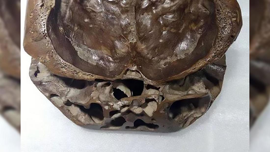 Vista frontal del supuesto cráneo alienígena