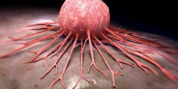 Desarrollan método que detecta diferentes tipos de cáncer en 10 minutos