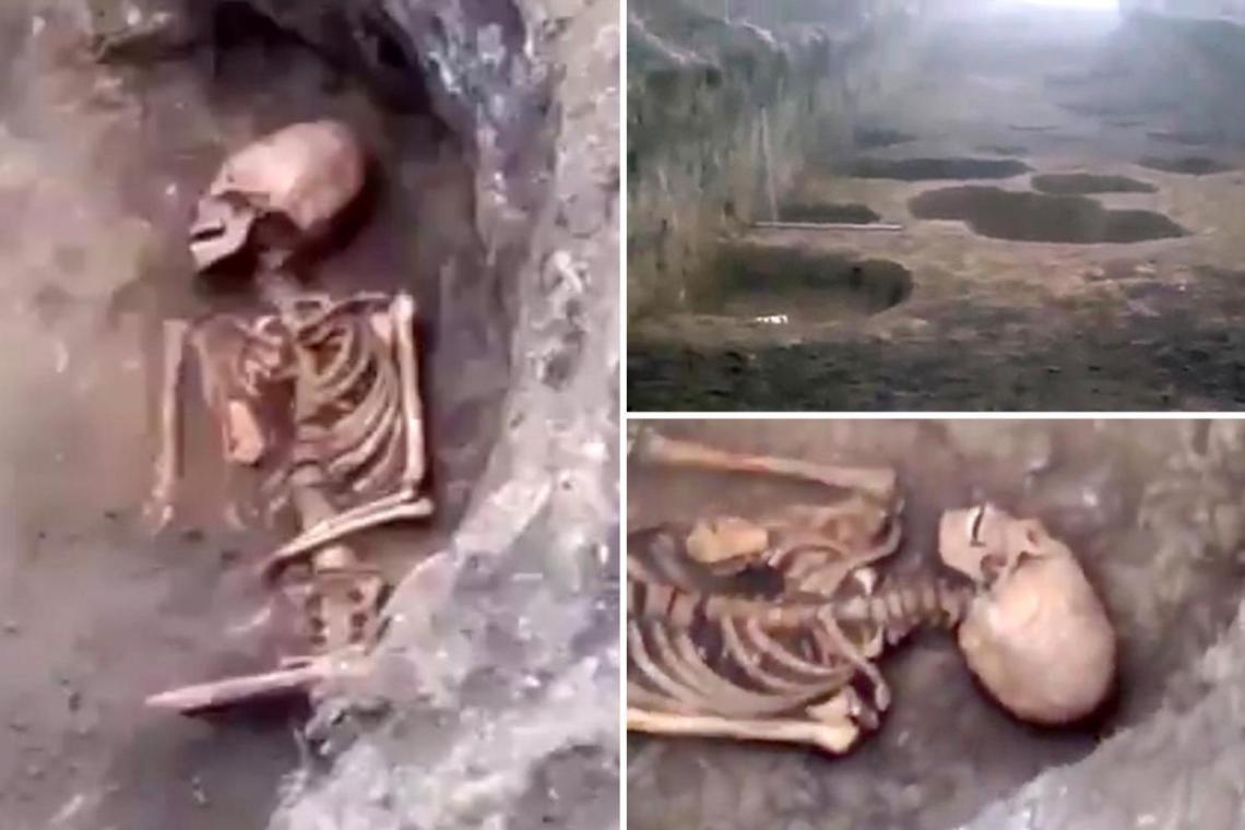 Fotografías del esqueleto hallado con un cráneo alargado y un supuesto conjunto de dientes completos y muy bien conservados