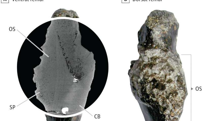 Tomografía muestra el hueso afectado