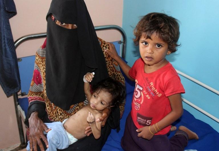 Los servicios de salud son casi inexistentes en Yemen. Se estima que 2 millones de niños requieren ayuda urgente