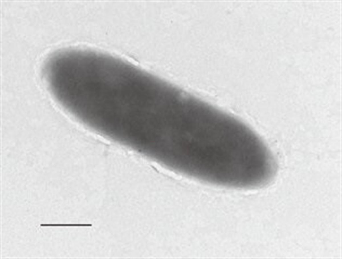 Una expedición para recolectar muestras de la población microbiana en la parte más profunda de la Fosa de Mariana (unos 11.000 metros de profundidad) ha revelado una nueva bacteria que «come petróleo»