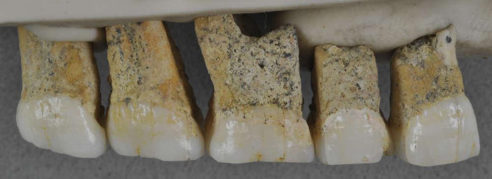 Dientes superiores - molares y premolares - hallados y correspondientes al Homo luzonensis