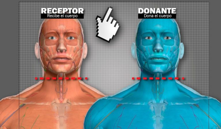 Dos médicos dicen estar listos para realizar trasplantes de cabezas en humanos