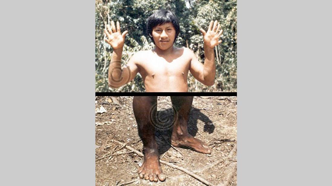 Supuesto miembro de la tribu Waorani en Ecuador, con seis dedos en manos y pies.