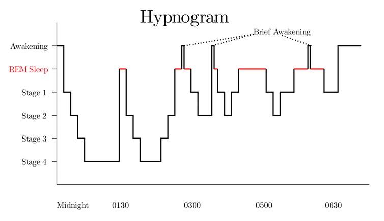 Las etapas rápidas de movimiento ocular del sueño (REM) aumentan progresivamente en duración después de cada ciclo de sueño