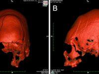 Cráneos «alienígenas» alargados y puntiagudos son encontrados en entierro de 1.500 años en Croacia