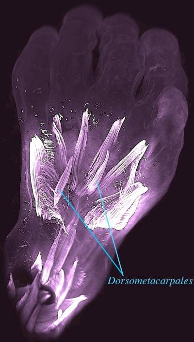 Vista dorsal de la mano izquierda de un embrión humano de 10 semanas de edad. Se destacan los dorsometacarpales: estos músculos (como otros descritos en este estudio) están presentes en adultos de muchos otros animales con extremidades, mientras que en los humanos normalmente desaparecen o se fusionan con otros músculos antes del nacimiento